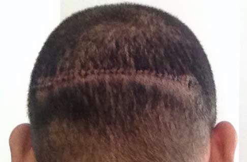 Hukum Tanam Rambut
